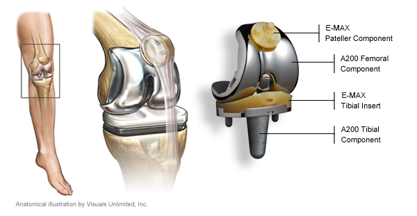 Knee Replacement Information for Patients